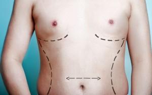 homme-chirurgie-esthetique
