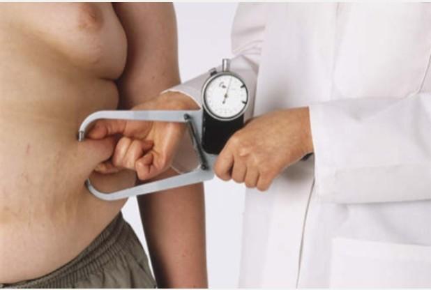 Chirurgie de l'obésité en tunisie