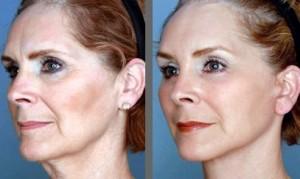 lifting cervico-facial resultat