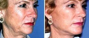 resultat lifting cervico facial