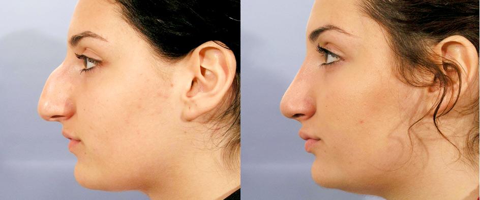 chirurgie reparatrice ou esthetique du nez
