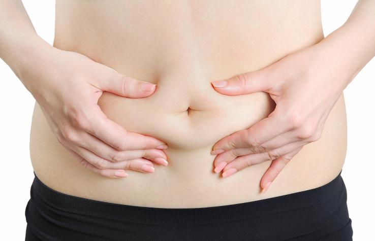 abdominoplastie et obesite