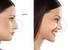 rhinoplastie-tunisie-avant-apres-femme