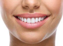 Facettes dentaires en Tunisie