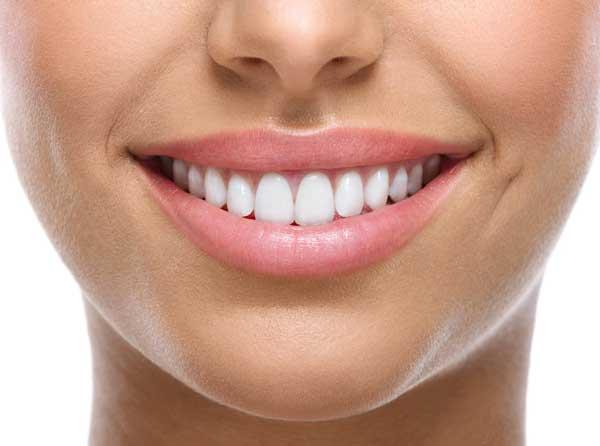 """""""facettes dentaires"""