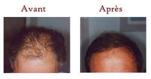 implantation des cheveux en tunisie