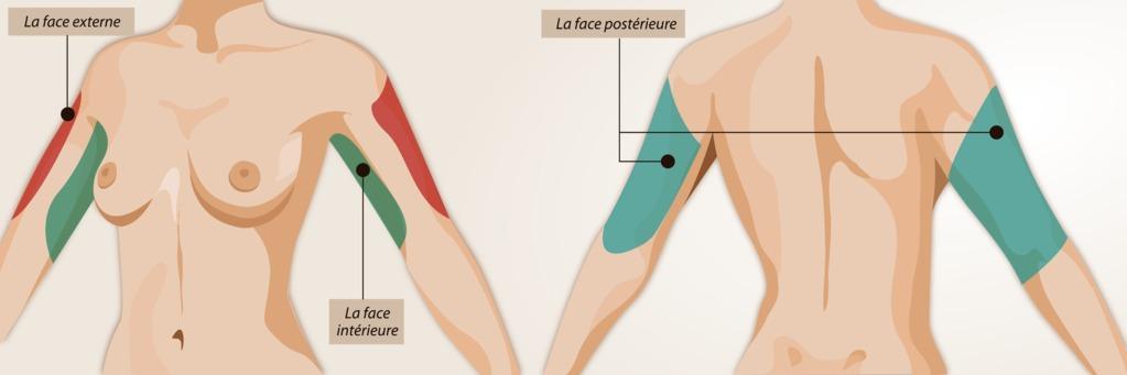 Liposuccion des bras