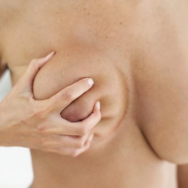 La Chirurgie de réduction mammaire