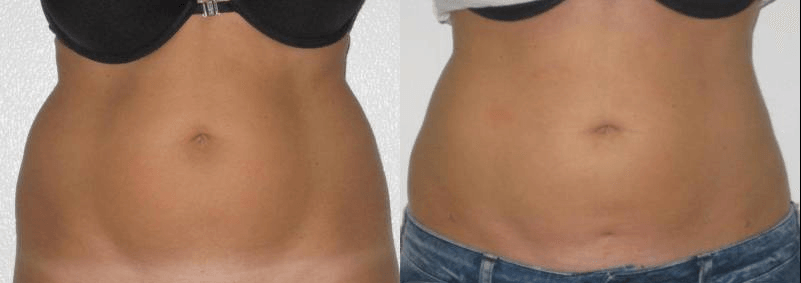 liposculpture abdominale