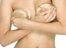 prothèses mammaires rondes
