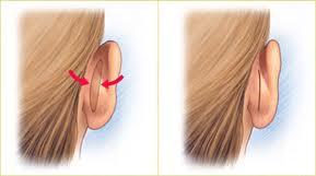La chirurgie des oreilles décollés