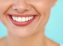 couronnes dentaires