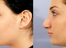 chirurgie esthétique de nez
