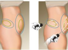 Liposuccion laser