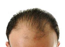 greffe cheveux
